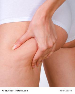 Cellulite am Po