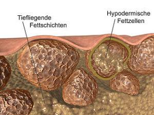 Cellulite: Fettschichten und Hypodermische_Fettzellen