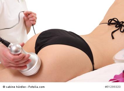 Cellulite Behandlung mit Ultraschall am Oberschenkel