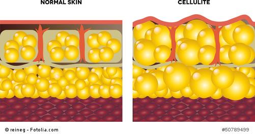 Cellulite Hautstruktur